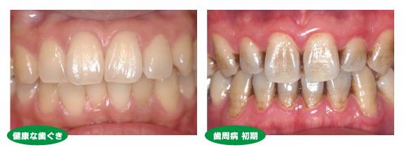 歯槽 膿 漏 Mhlw.go.jp